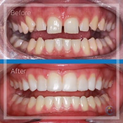 For this patient's case, upper and lower braces were used to correct her alignment with Dr Dinesh, followed by the placement of composite resin veneers by Dr Charlie. This transformation, along with many others we have completed, was a team effort, and we are so glad that we could give this patient the result she was looking for!