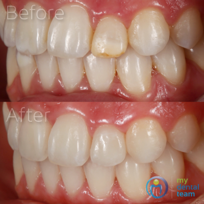 This young female patient presented with enamel defects on her teeth (both white and brown spots) which she was quite self-conscious about. We treated the minor white spots with a modern technique called Icon Resin Infiltration - a non-invasive way of masking enamel defects that does not involve any removal of tooth structure. Meanwhile, the severe brown defect on her upper left tooth was treated with a ceramic veneer - a hand layered porcelain facing, cemented onto the tooth.