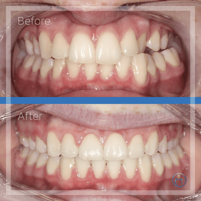 Before and after braces.