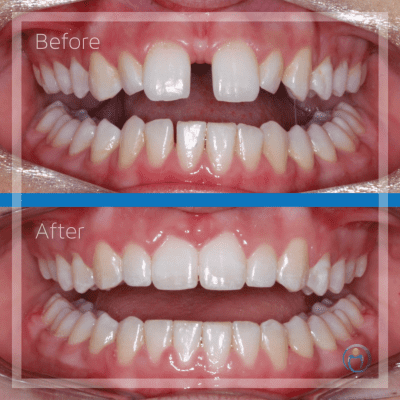 Claire's amazing result was achieved through upper and lower braces along with a frenectomy to prevent the space between her two front teeth from opening up again. Additionally, an upper fixed lingual retainer was also placed to secure the alignment of her teeth.