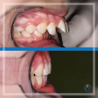 One of our recent bite correction cases on a young teenage patient. Such a severe overbite may have required jaw surgery to correct in adulthood. This patient came into our clinic at the age of 11. Within 18 months of braces and good elastic wear, we were able to give her a healthy and functional bite that she could feel confident in.
